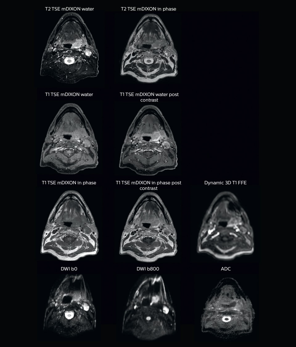 mri of head and neck for radiation therapy planning
