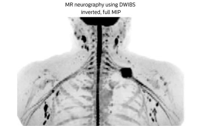 MR neurography using DWIBS inverted, full MIP