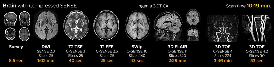 Brain with Compressed SENSE